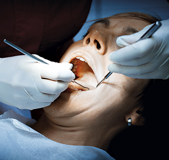 dentist examining a patients teeth