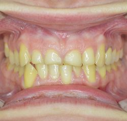 Fig 5 Emotional and physical stress are potential causes of bruxism