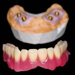 Implant-retained over-denture