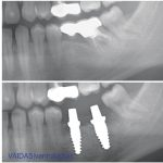 Before and after X-rays showing zirconia implants in situ