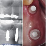 Before and after X-rays and intra-oral photograph